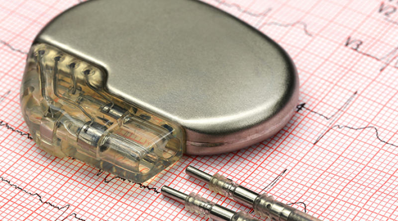 [TECNO] ¿Pueden hackear los marcapasos? por @Dianacos y @lematecno